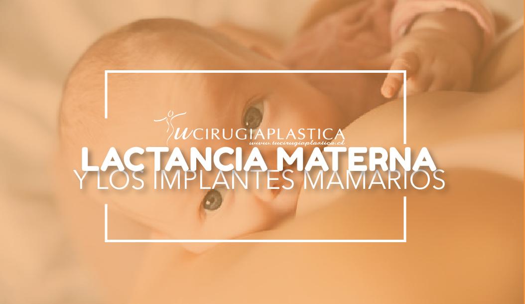 Lactancia Materna e Implantes Mamarios